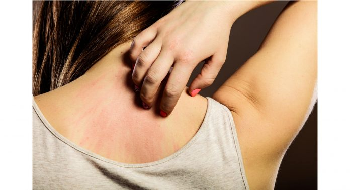 Histaminintoleranz-HIT-weibliche-Geschlechtshormone-Östrogen-Östradiol