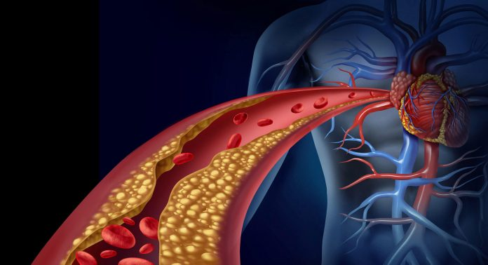 Arteriosklerose, Atherosklerose, Arterienverkalkung, Plaques
